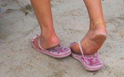 Le infradito fanno male, rovinano i piedi e non solo